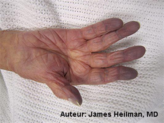 Cyanose : symptômes, traitement, définition - docteurclic.com