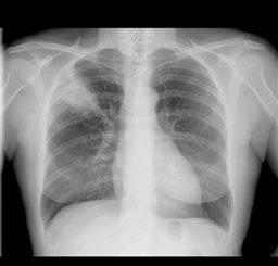 Fracture Des Côtes Symptômes Traitement Définition Docteurclic Com