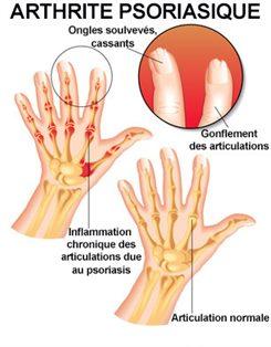 Psoriasis : symptômes, traitement, définition - docteurclic.com