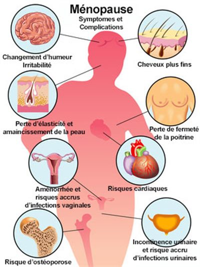 symptomes de la menopause chez la femme