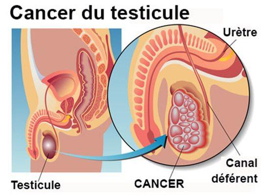 Tumeur du testicule : symptômes, traitement, définition ...