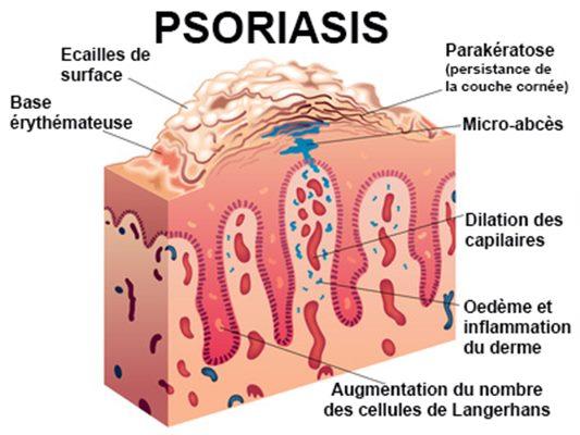 traitement psoriasis