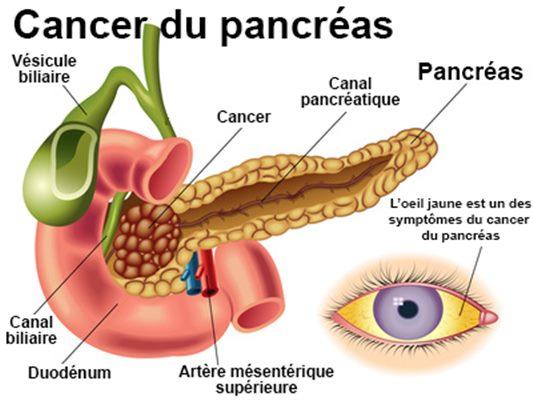 maladie du pancreas chez la femme