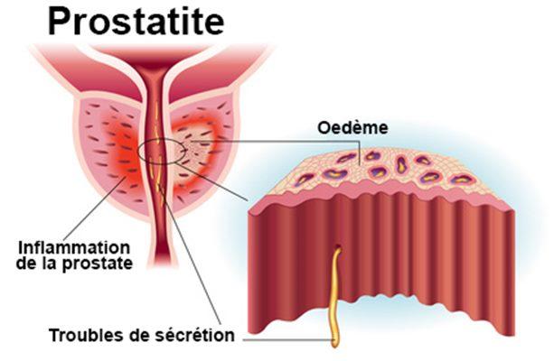 inflammation de la prostate remèdes