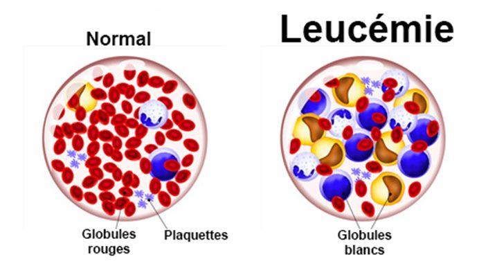 Leucémie : symptômes, traitement, définition - docteurclic.com