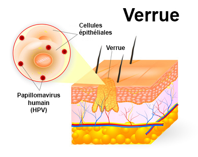 hpv and throat cancer signs and symptoms condilom vishnevsky
