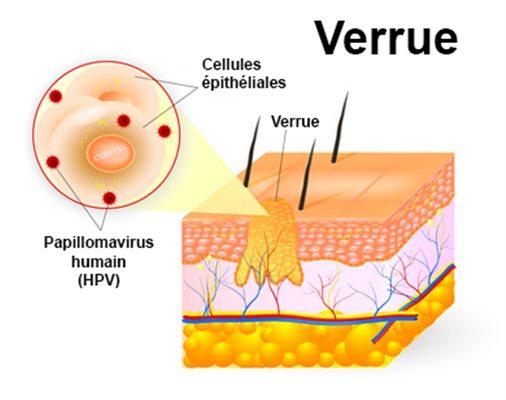 hpv verrue traitement
