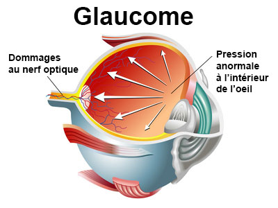 Glaucome : maladie oculaire : symptômes, traitement, définition -  docteurclic.com