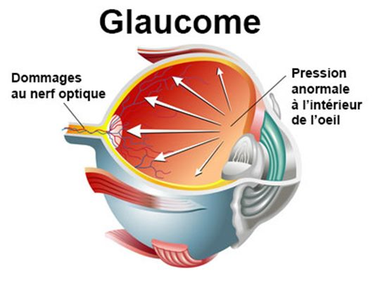 Glaucome : maladie oculaire