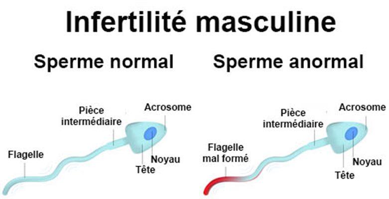 Infertilité et stérilité de l'homme : définition