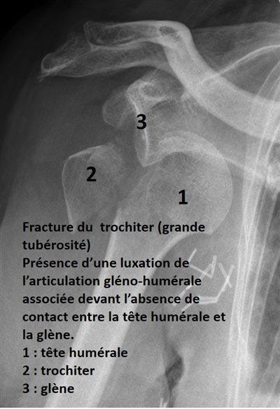 Fracture épaule extrémité proximale de l'humérus : définition ...