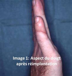 Apoplexie Digitale Idiopathique Hématome D Un Doigt Définition Docteurclic Com