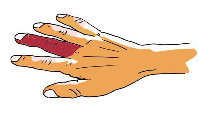 Apoplexie digitale idiopathique - hématome d'un doigt ...