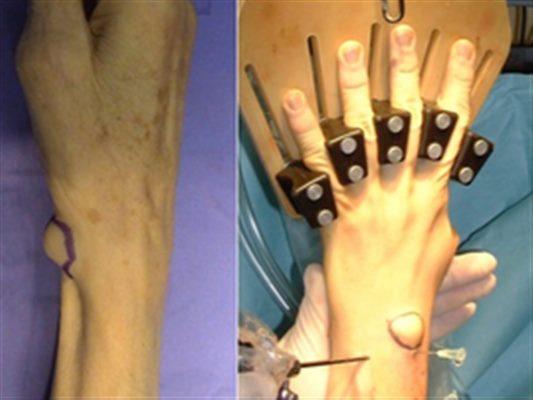 Kyste du poignet : traitement, définition - docteurclic.com
